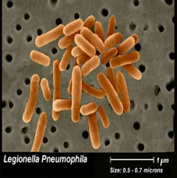 Picture of Legionella bacteria